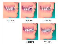 5_orthodontic_treatment.jpg
